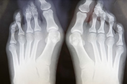 Bunion, Toe Problem, Podiatry, Podiatrist, Foot Doctor, toenail fungus